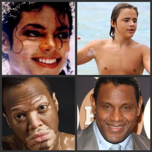 Lifestyle News Of The Day: Vitiligo – ThatPlum.com  Lifestyle News ...